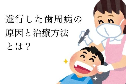 進行した歯周病の治療
