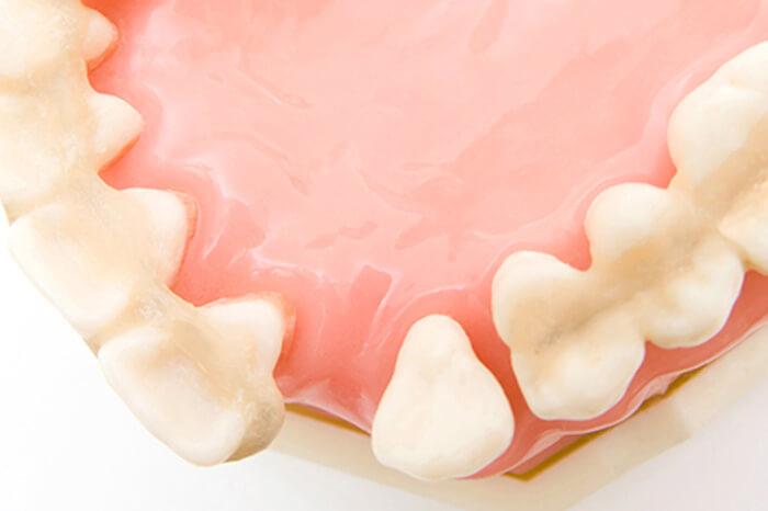 歯を失ってしまったら